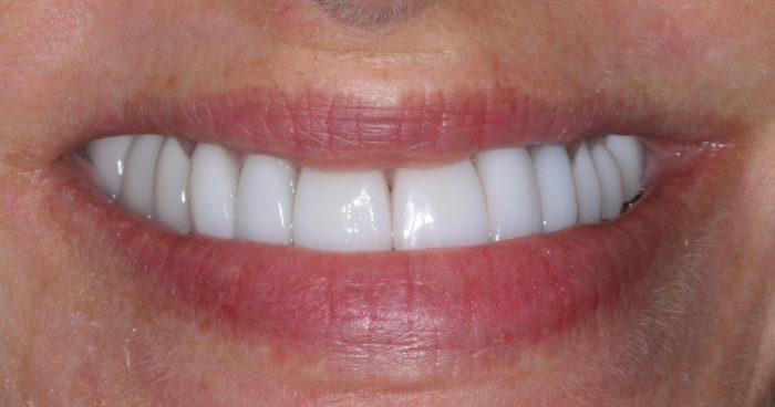 Frankfort IL Dentist