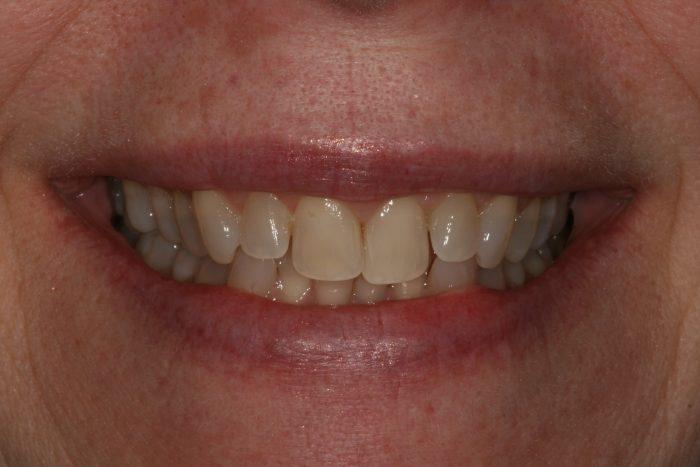 Dentist Frankfort IL